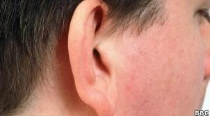 Pelos ouvido (Foto: BBC)