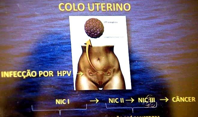 O HPV é um vírus que se transmite principalmente por via sexual (Foto: Reprodução TV Amazonas)