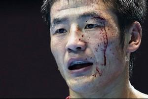 Sangramento no boxe- Jogos Asiáticos (Foto: Divulgação/AIBA)
