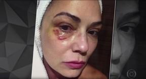 Luiza Brunet em foto feita após agressão que ela afirma ter sofrido do ex-marido, Lírio Parisotto (Foto: Reprodução TV Globo / Fantástico)