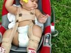 Mãe faz campanha para ajudar criança de 1 ano com displasia no quadril