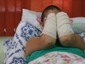 Jovem teve mãos decepadas pelo companheiro no RS (Foto: Diego Vara/Agência RBS)