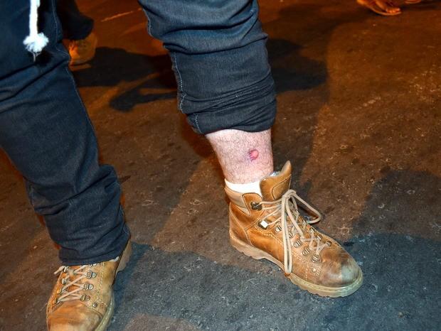 Manifestante ferido durante confronto com a Guarda Civil em Piracicaba (Foto: Fernanda Zanetti/G1)