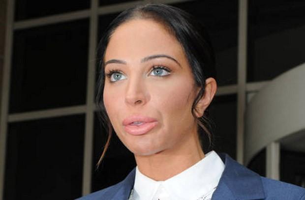 Tulisa Contostavlos em 2014, após alergia por preenchimento labial (Foto: Reprodução)