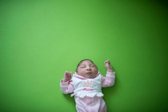 Crainça recém-nascida com microcefalia (Foto: AP Photo/Felipe Dana)