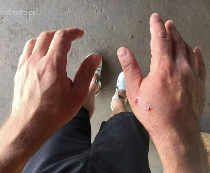 Ator mostra a mão machucada (Foto: TV Globo)