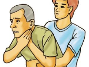 Ilustração mostra manobra de Manobra de Heimlich (Foto: Sociedade Brasileira de Cardiologia/Divulgação)