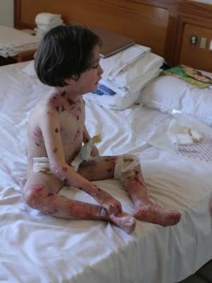 Doença causa bolhas e lesões a partir de um simples toque na pele (Foto: Arquivo pessoal)