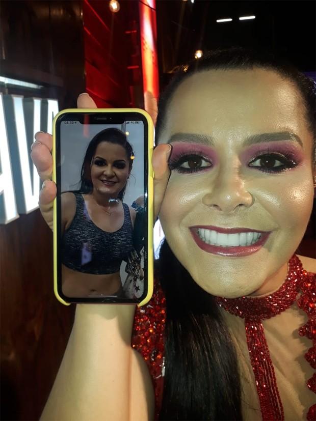 Maraisa mostra antes e depois do nariz após cirurgia plástica (Foto: QUEM)