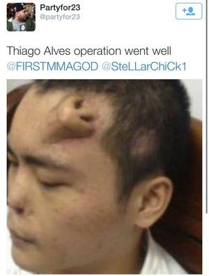 meme Thiago Pitbull Alves