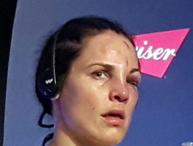 BLOG: Rosto de Lina Lansberg chama atenção na entrevista coletiva após o UFC Brasília