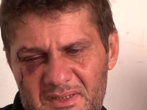 Pai do garoto morto após ser espancado em assalto na Bahia tem hematomas (Foto: Reprodução/ TV Santa Cruz)
