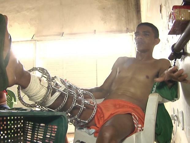 Ademir Silva Pereira está preso na delegacia de Santa Inês e precisa apoiar a perna quebrada em cima de uma caixa (Foto: Reprodução/TV Mirante)