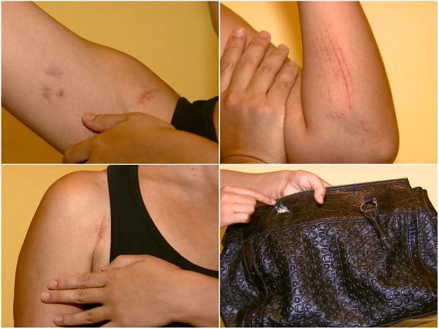 Na tentativa de fugir, socióloga foi agredida e teve a bolsa rasgada (Foto: Ely Venâncio/ EPTV)