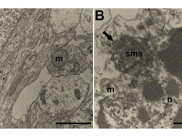 Tecido nervoso normal (A) e tecido infectado pelo zika (B); flecha mostra o vírus. (Foto: Rehen et. al/PeerJ)