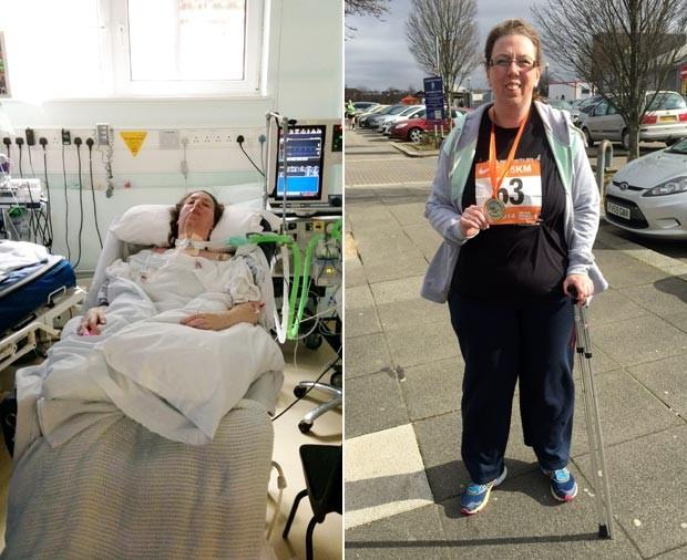 A inglesa Jenny Bone quando ainda estava em coma induzido, na UTI, e um ano depois, orgulhosa por participar, com bengala, de corrida beneficente (Foto: The Grosby Group)