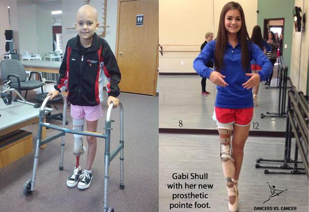 Gabi Shull aos 9 anos, quando o câncer foi descoberto, e hoje aos 15 (Foto: Acervo pessoal / Reprodução Facebook )