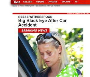 Reese Whiterspoon após o atropelamento (Foto: Reprodução/TMZ)