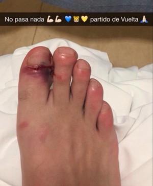 Gignac pé Tigres River Plate (Foto: Reprodução / Snapchat)