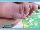 Criança tem pés queimados em creche em MS; prefeitura apura