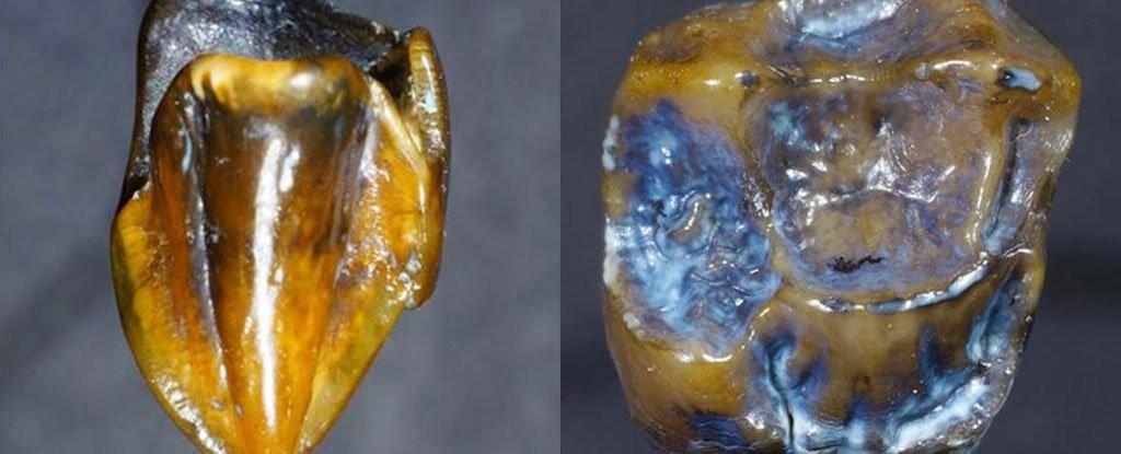 Dentes de 9 milhões de anos podem mudar a história da humanidade