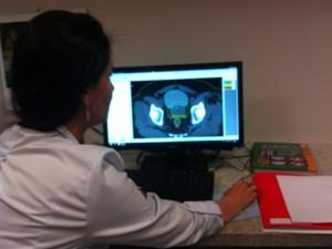 Imagem computadorizada da total precisão para local que receberá a radioterapia  (Foto: Ana Carolina Caldeira/G1)