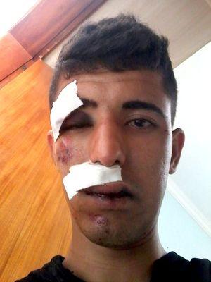 Eventon Cavalcante foi agredido por jogador de futebol em Piracicaba (Foto: Everton Cavalcante/arquivo pessoal)