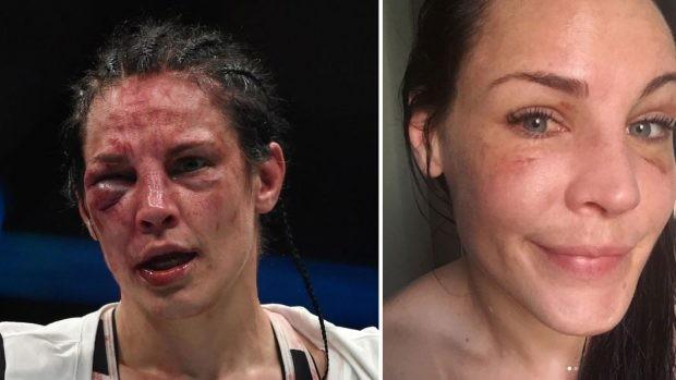 BLOG: Lina Lansberg mostra recuperação surpreendente e pede luta no UFC Suécia