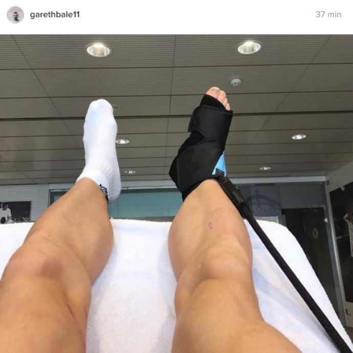 "BLOG: Grato aos fãs, Bale mostra tornozelo lesionado e diz: ""Farei de tudo para voltar"""