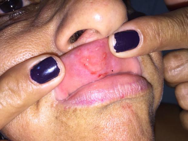 Francisca mostra ferimento deixado após levar soco na boca (Foto: Francisca Oliveira/Arquivo Pessoal)