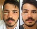 Fisioterapeuta explica recuperação de Erick Silva após fratura na face; assista