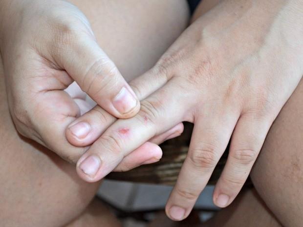 Jovem mostra que ficou com arranhões nas mãos após a briga com a irmã (Foto: Iryá Rodrigues/G1)
