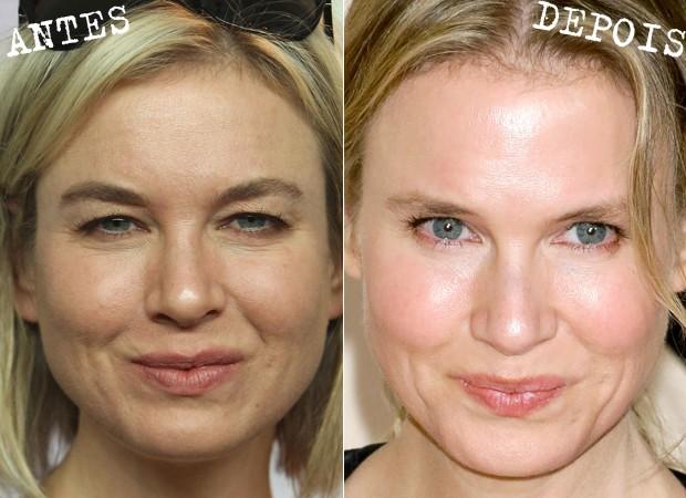 Antes e depois de Renée Zellweger (Foto: Getty Images)