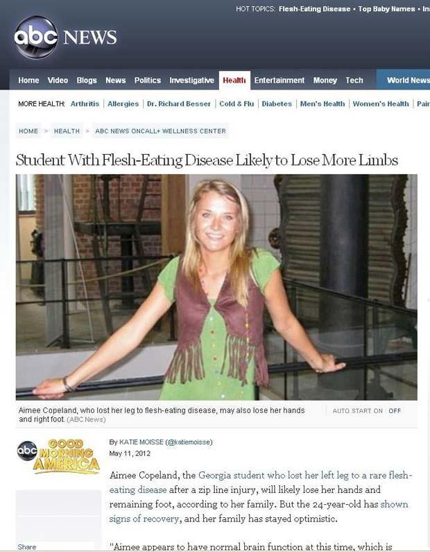 Aimee Copeland sofre com doença chamada fasceíte necrotizante (Foto: Reprodução/ABC) (Foto: Reprodução/ABC)