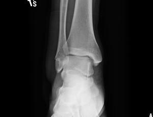 bruno medina raio-x (Foto: Reprodução )