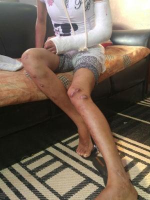Jovem foi torturada várias vezes pelo namorado (Foto: Jomar Bellini/G1)