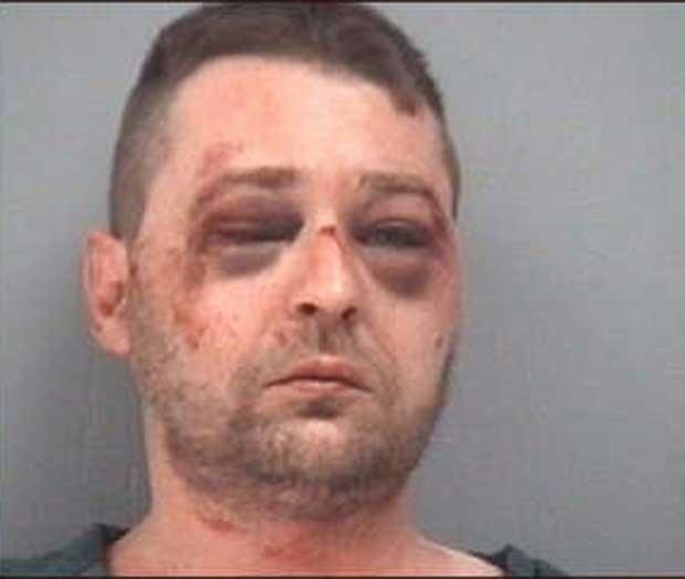 Christopher Finney Jr. terminou com os olhos roxos. (Foto: Divulgação)