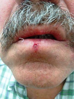 Roberto também ficou com ferimentos na boca  (Foto: Arquivo Pessoal)