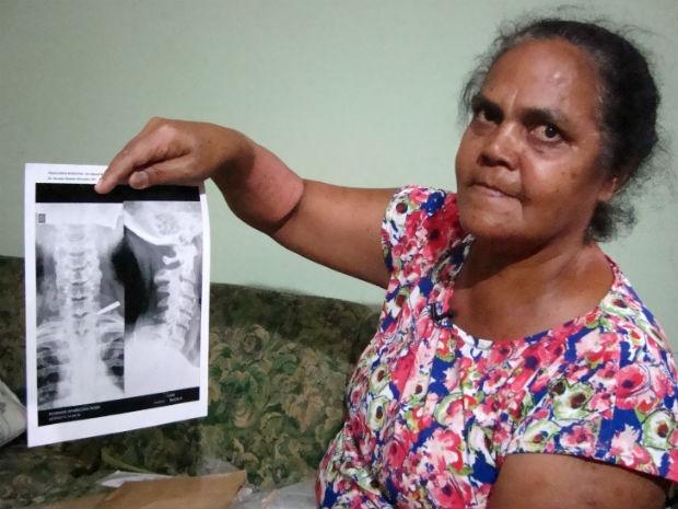 Doméstica descobriu depois de 37 anos que tinha um pedaço de punhal alojado em seu ombro esquerdo (Foto: Natália de Oliveira/G1)