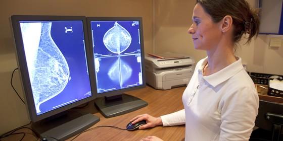 Mamografia: a frequência do exame preventivo para câncer de mama é tema de discussão até entre médicos (Foto: Think Stock)