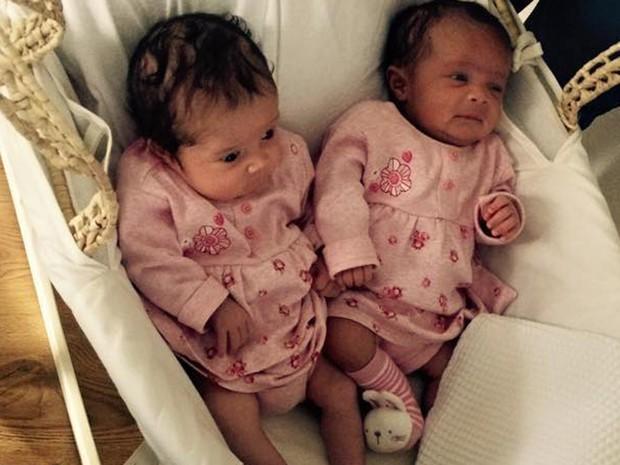 Médicos se surpreenderam com as diferenças das gêmeas (Foto: Reprodução/Facebook/Libby Appleby)