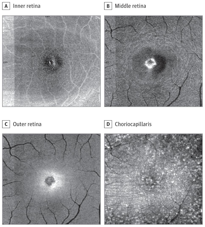 (Foto: JAMA Ophthalmology/New York Eye and Ear Infirmary of Mount Sinai)