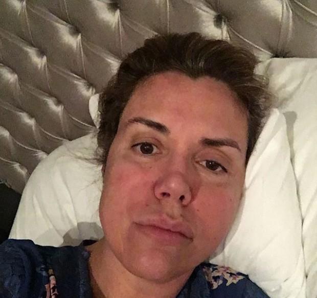 Renata Banhara na época da infecção (Foto: Reprodução/Instagram)
