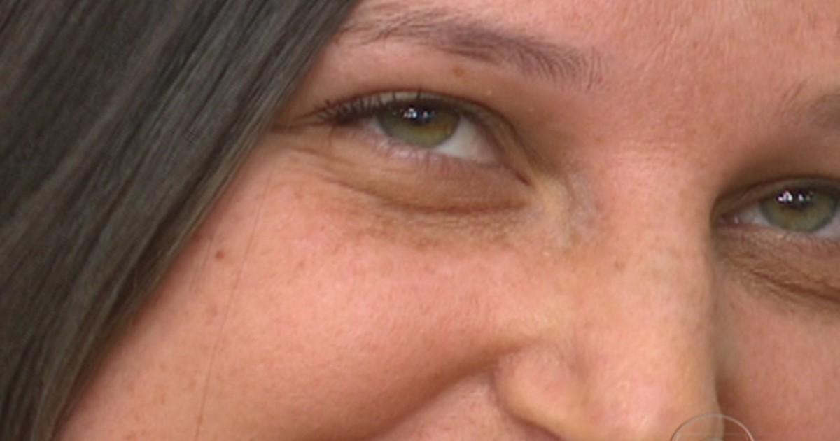 0014f4e64 Bem Estar - Saiba como cuidar dos cílios e evitar complicações na região  dos olhos