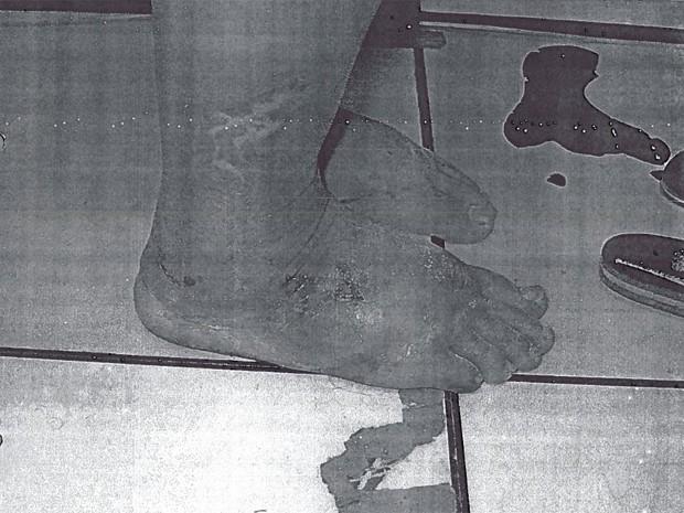 Apesar da excessiva magreza, v[itima chegou ao hospital com os pés extremamente inchados e com diversas lesões. (Foto: Divulgação / MPT)