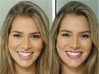 Antes e depois: Adriana Sant'Anna recorre à micropigmentação na boca