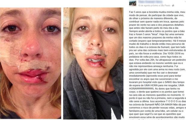 Jovem atacada postou foro do rosto machucado em sua página no Facebook  (Foto: Reprodução/Facebook)