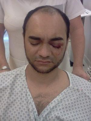 Fotógrafo tentava se proteger quando foi atingido no olho (Foto: Kátia Passos/Divulgação)