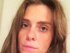 Conheça a técnica de alongar os cabelos usada por Carol Dieckmann