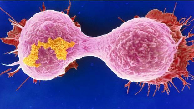 Mutação genética que leva à leucemia também pode causar câncer de mama agressivo (Foto: BBC)